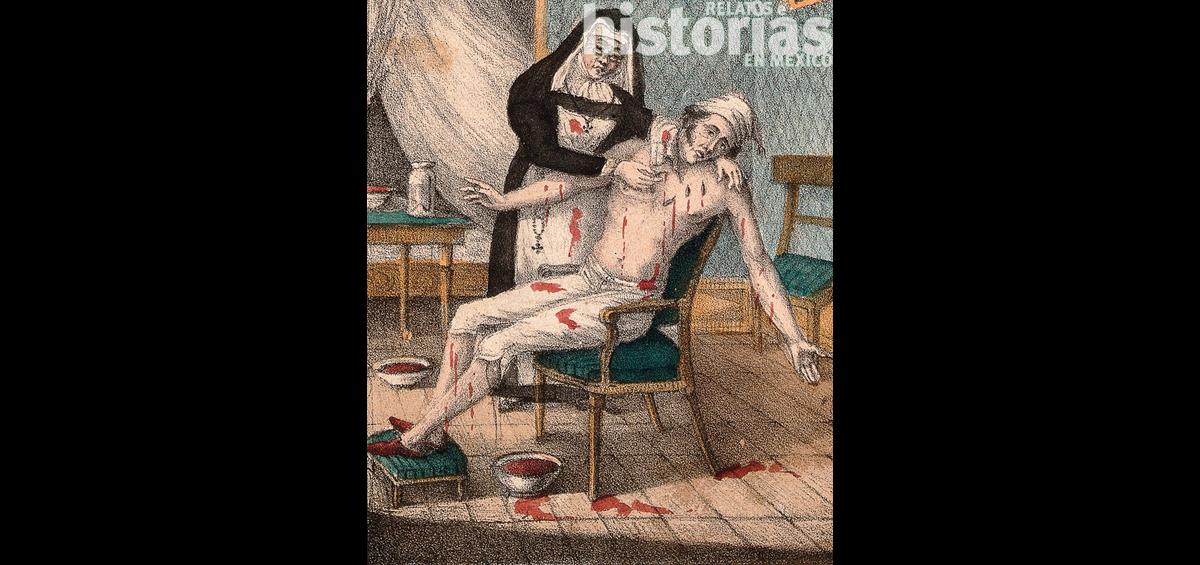 Terapia con sanguijuelas
